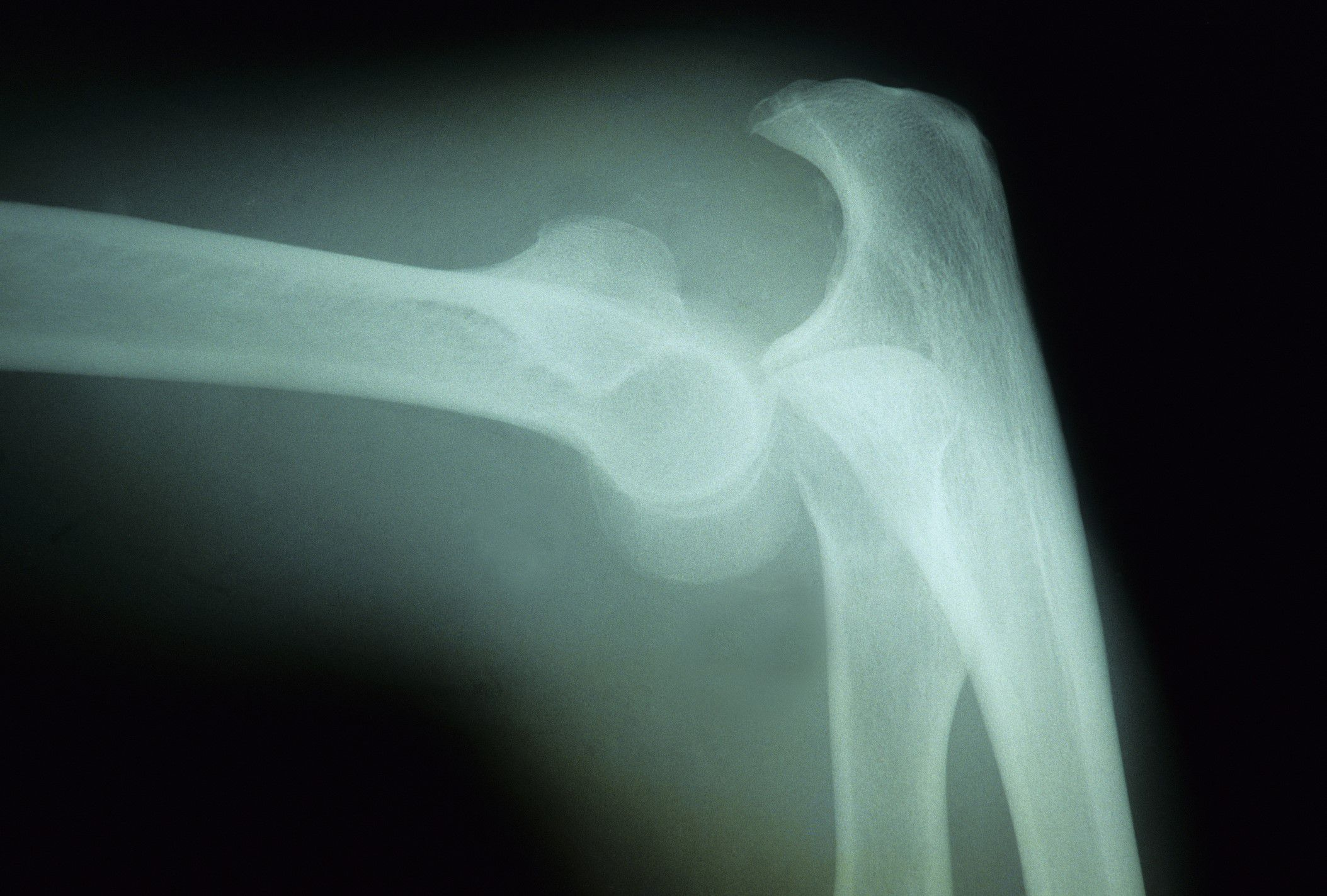 Elbow Dislocation Causes Symptoms And Treatment
