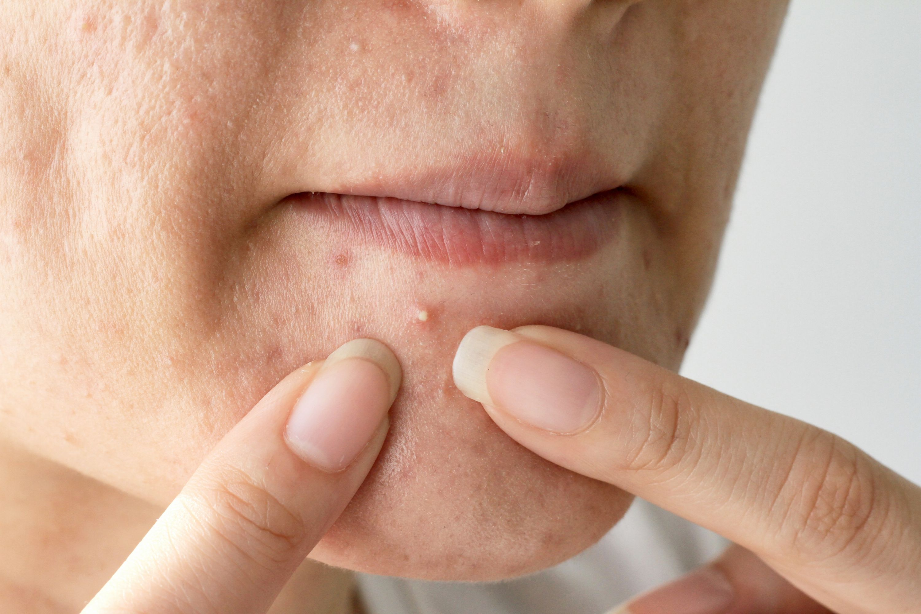 It Just Wont Stop But At Least Well >> 10 Things To Stop Doing When You Have Acne