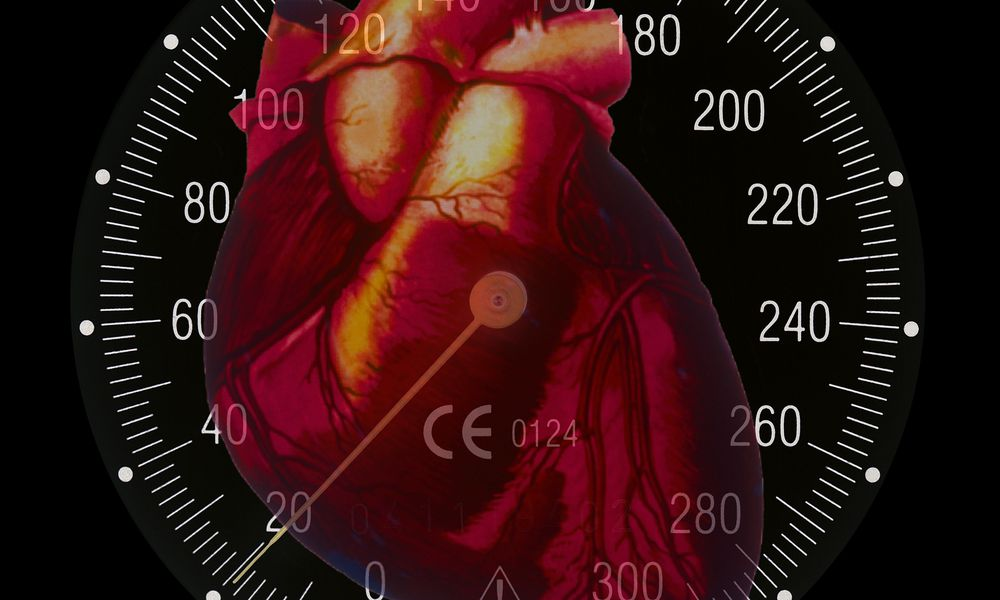 High Blood Pressure Causes and Risk Factors