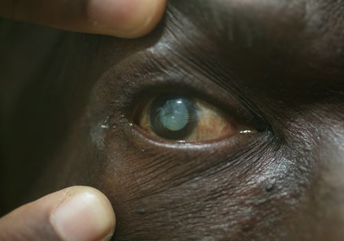 Male patient's eye with mature cataract