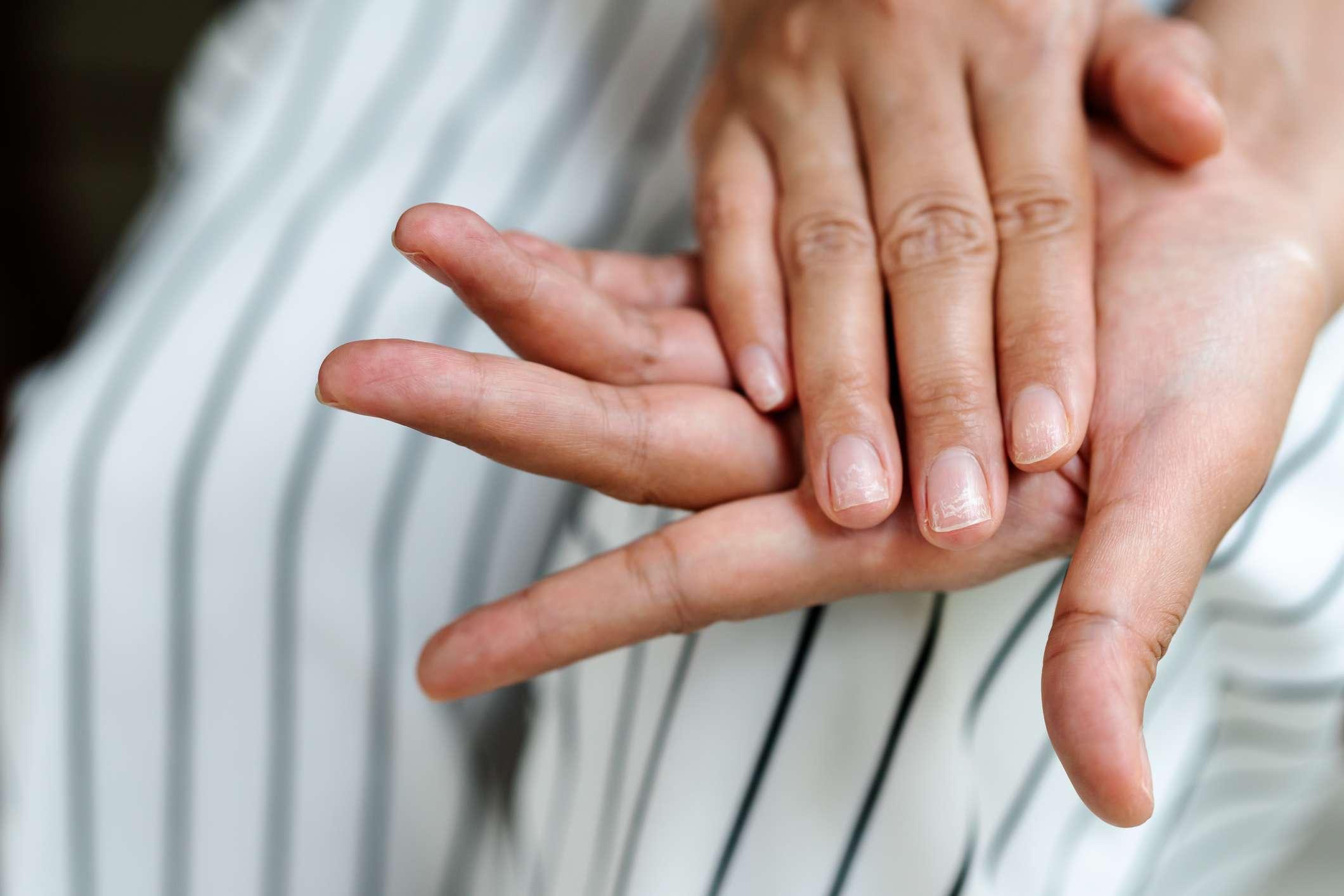 Brittle, damaged nails