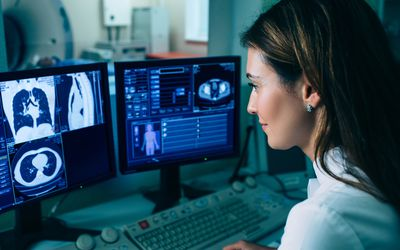 female radiologist reading chest CT scan, one of the tests used to diagnose small cell lung cancer