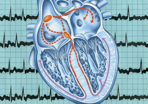 Atriall fibrillation