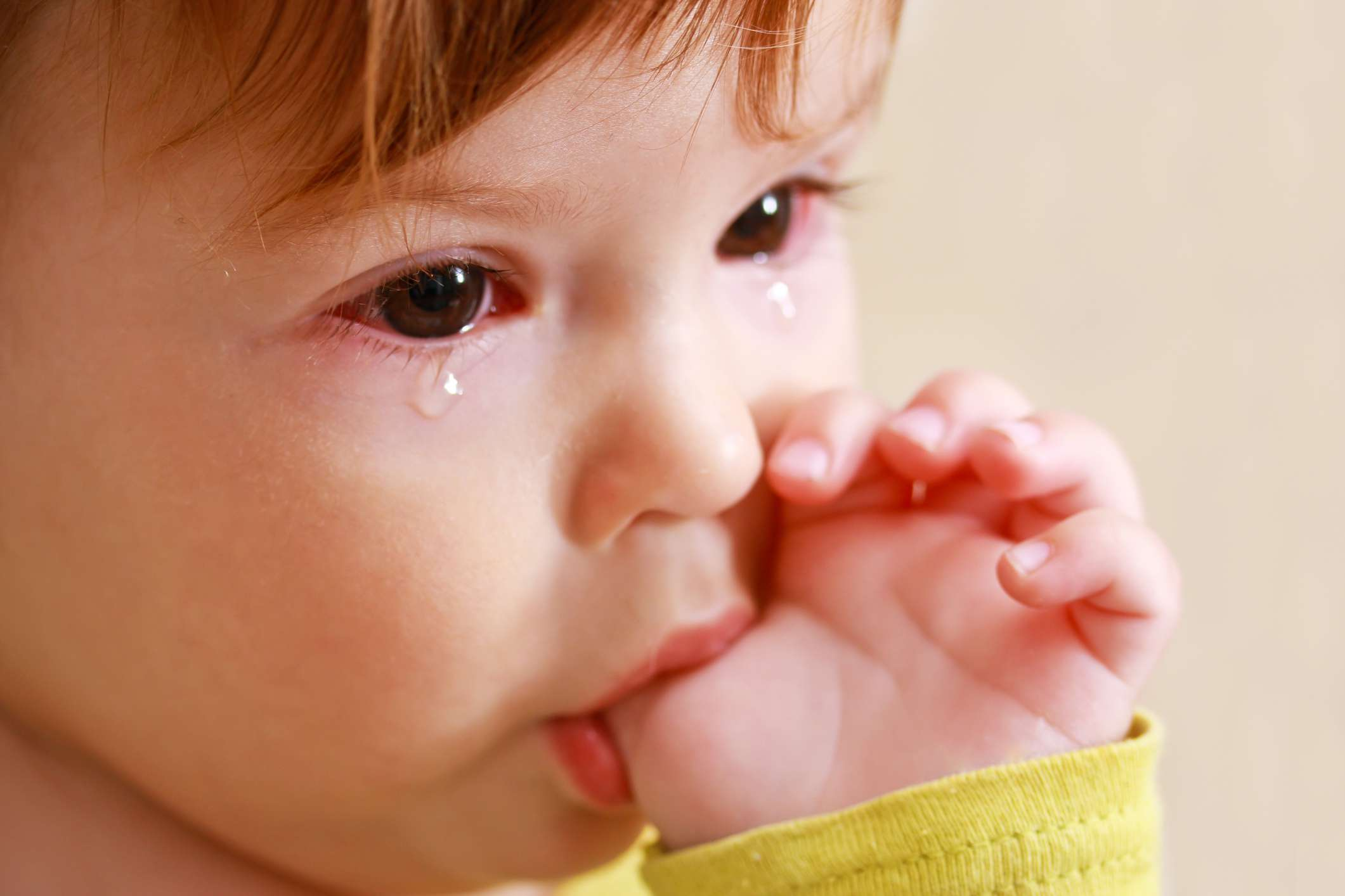 A child with pink eye