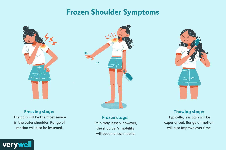 Frozen shoulder symptoms.