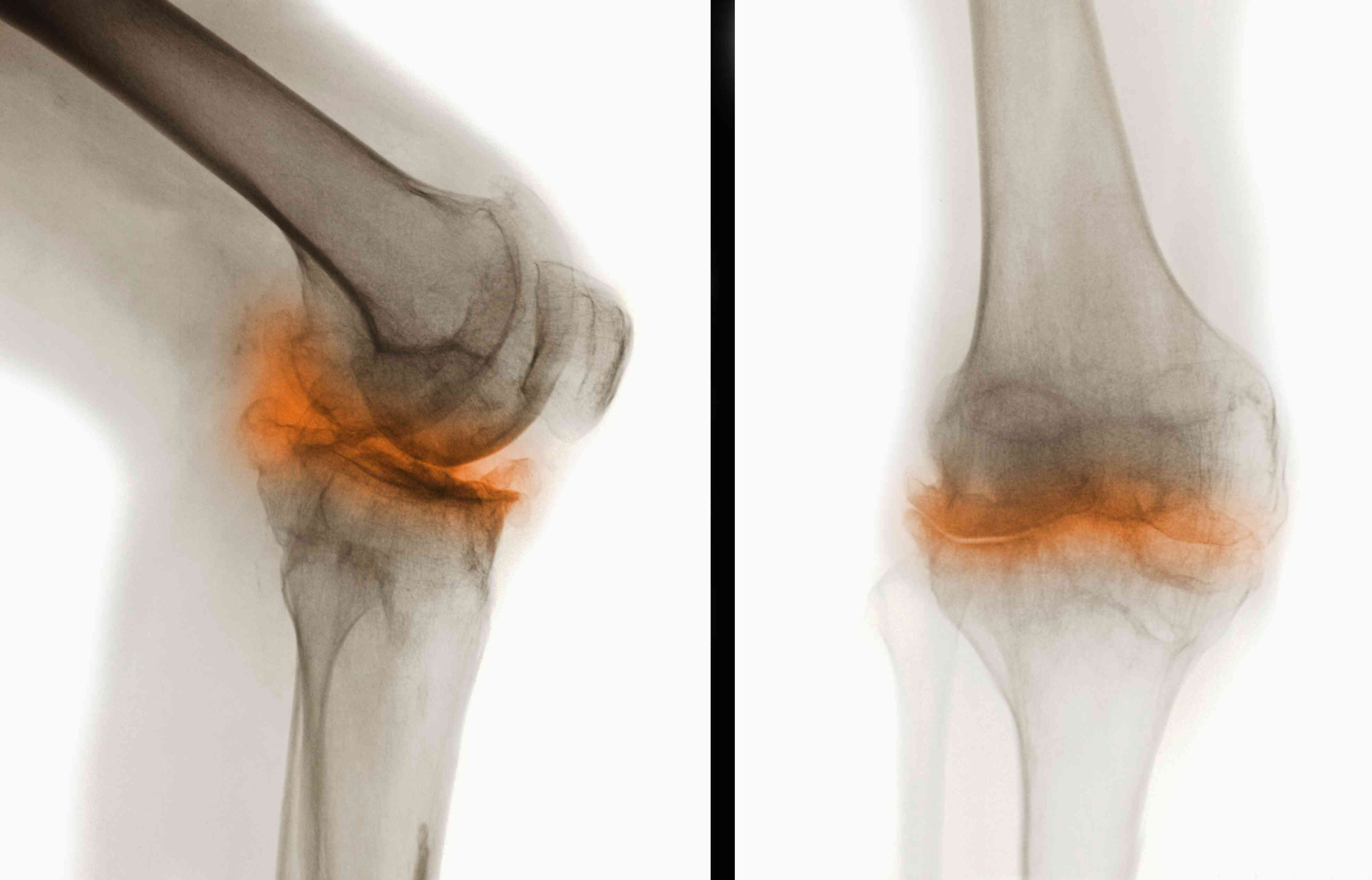 An X-ray of a knee shows damage from arthritis.