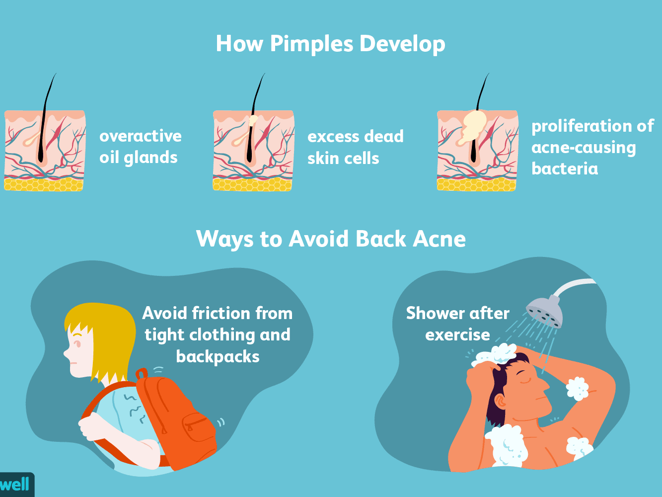 Body And Back Acne Basics Causes And Treatment