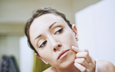 Acne Pustule Types, Causes, and Treatments