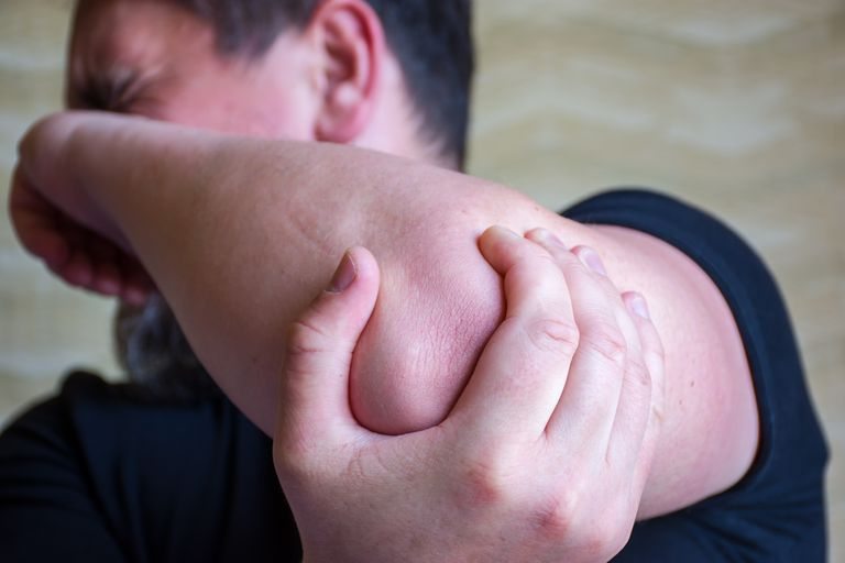 Ulnar Nerve Injury: Symptoms, Causes, Diagnosis, and Treatment