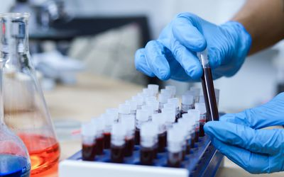 blood test vials examined