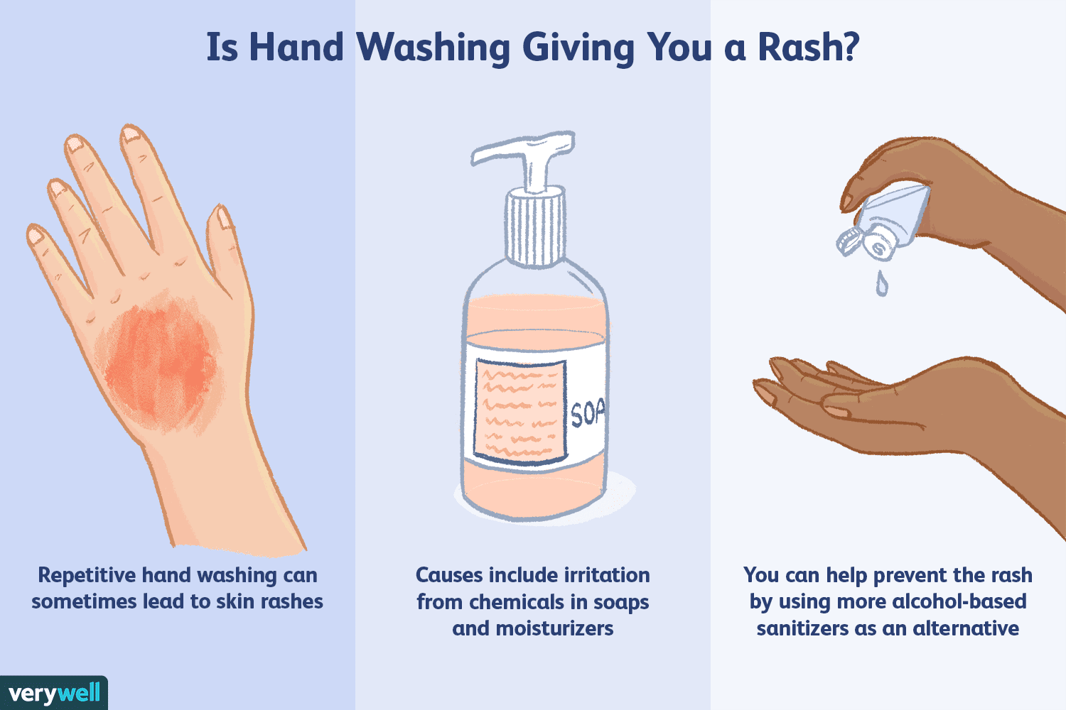 Allergic Reactions to Hand-Washing