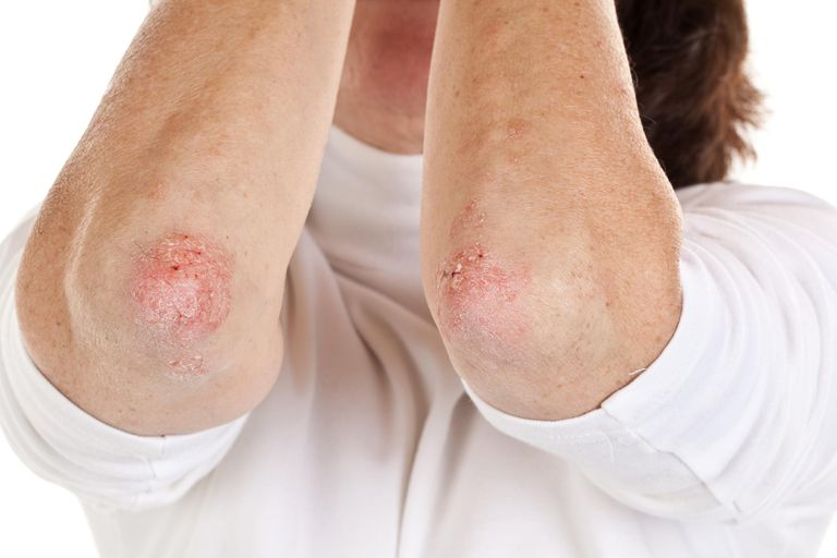 Woman with psoriasis on her elbows