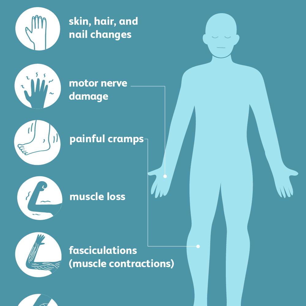 Symptoms of peripheral neuropathy