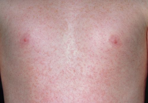 Child with German measles rash