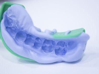 Dental impression