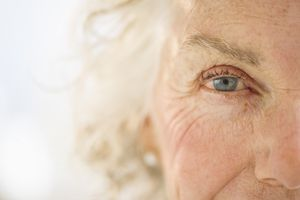 Nuclear Sclerosis Cataracts