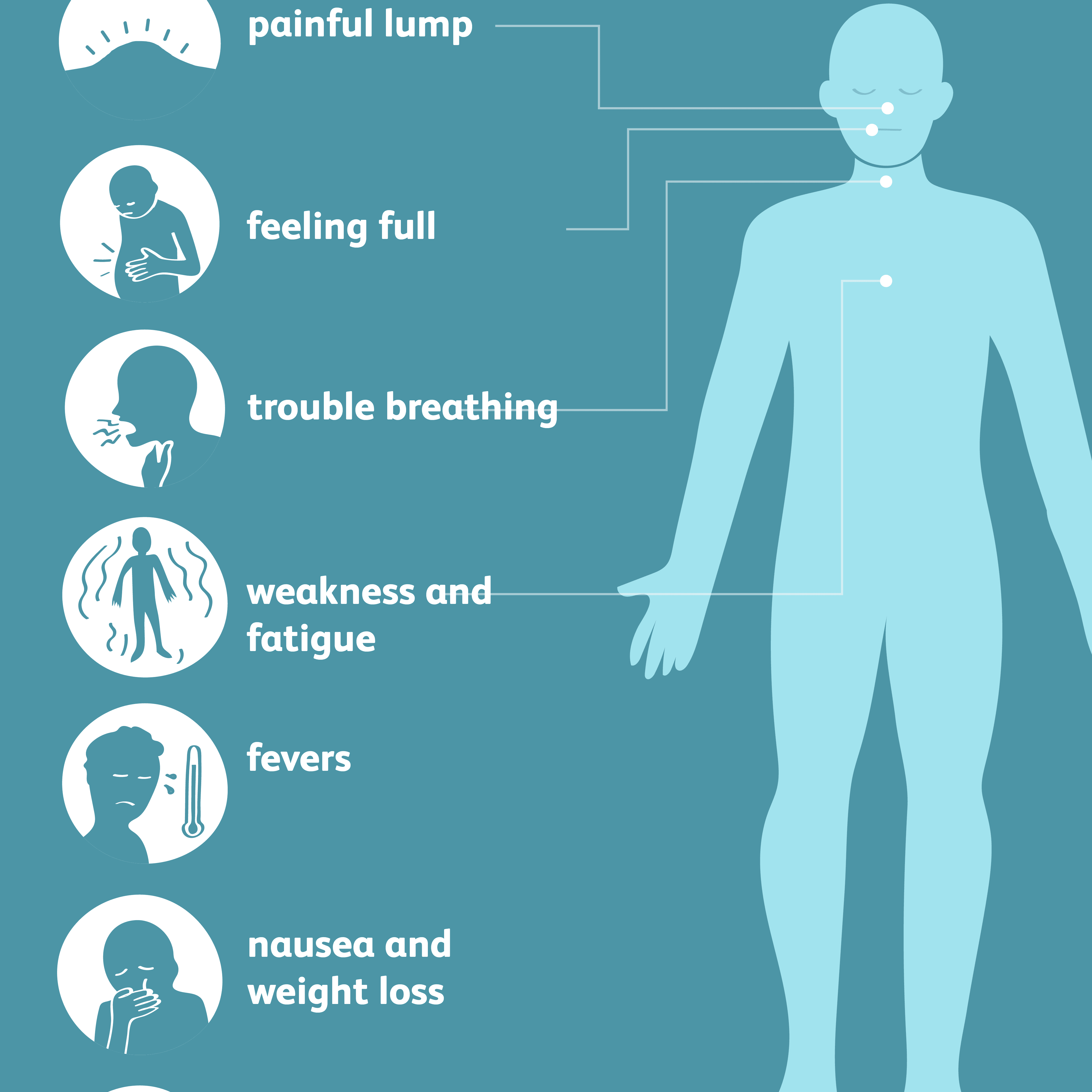 Castleman's disease symptoms