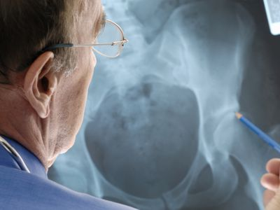 Doctor examining osteoporosis on an x-ray.
