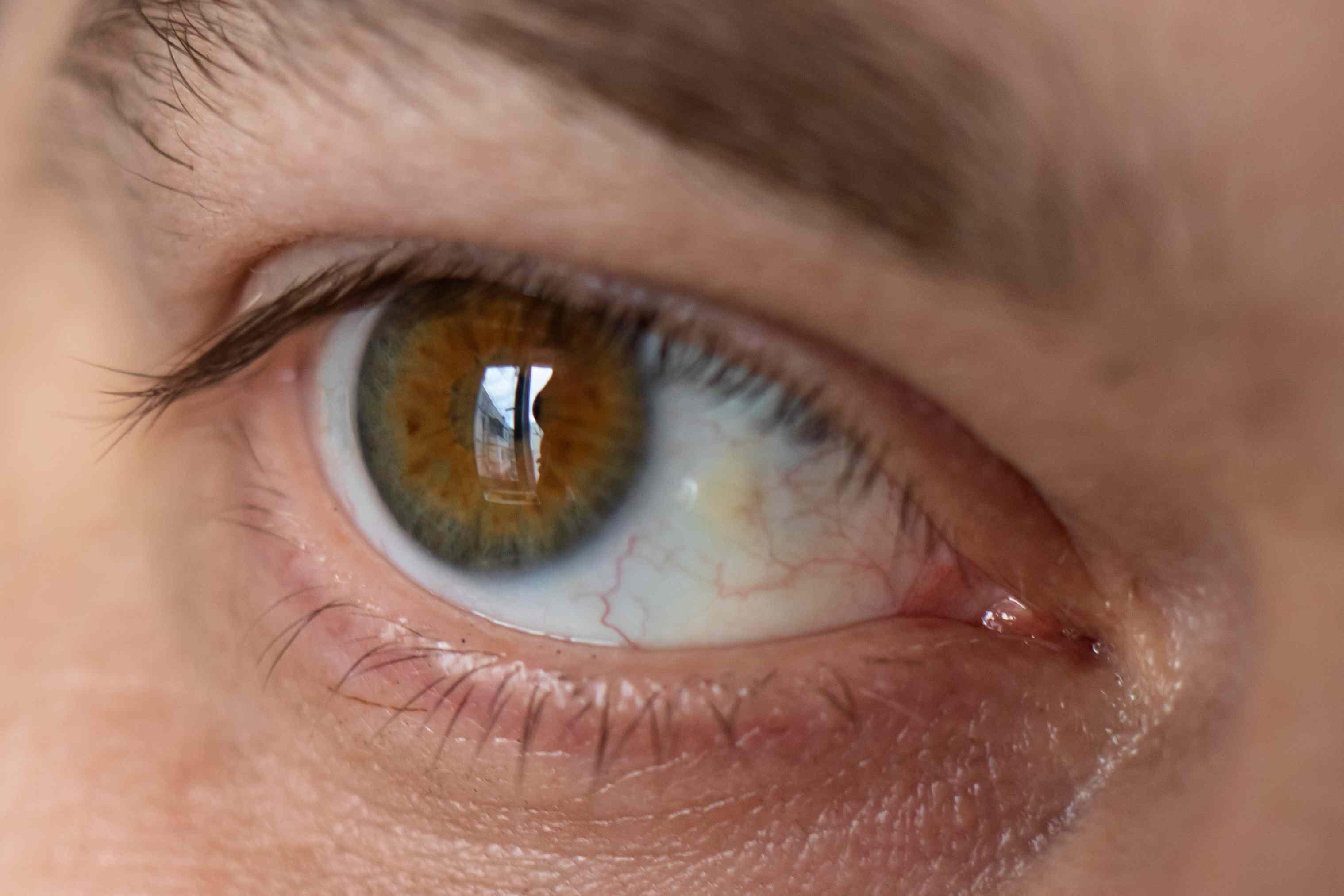 Pinguecula in the eye
