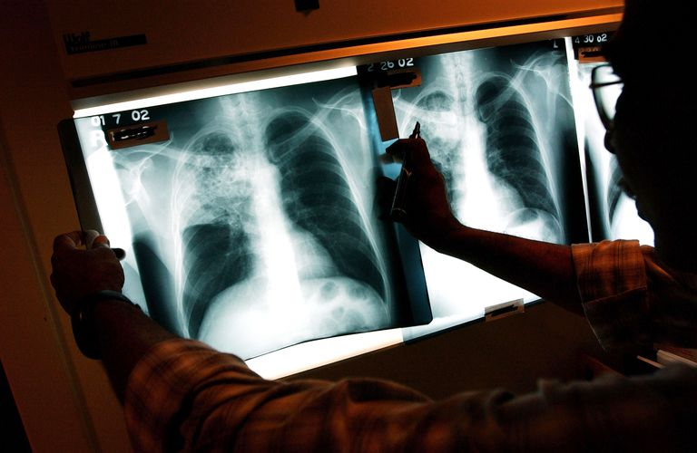 radiologist looking at lungs on chest x-rays