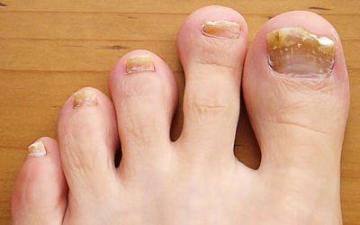 when to seek treatment for toenail trauma