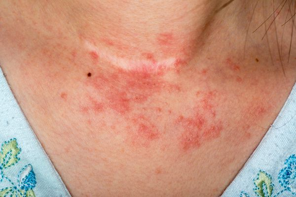 Contact dermatitis rash on woman's neck - symptoms of contact dermatitis