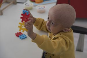 A child with progeria playing with puzzle pieces.