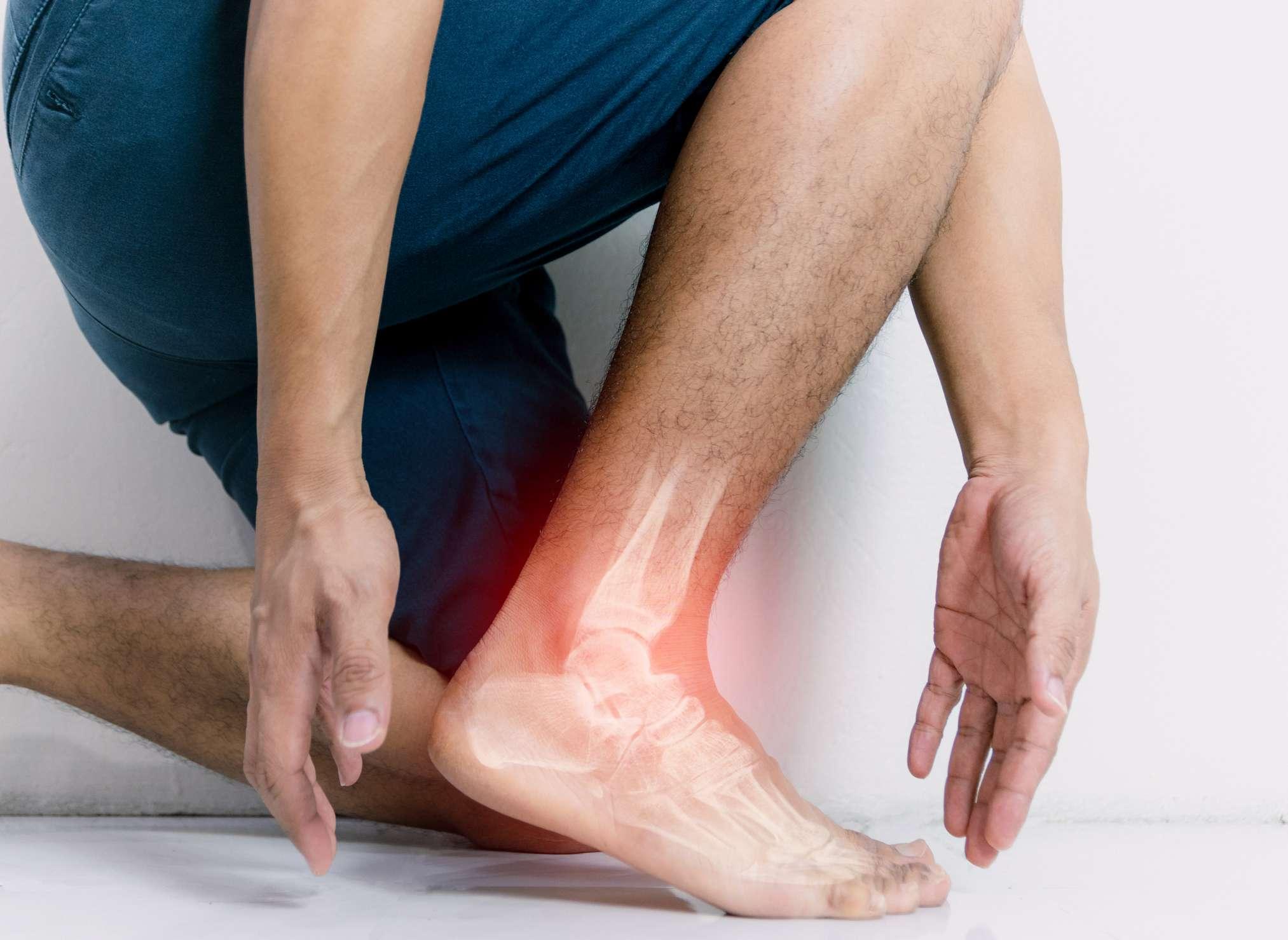 Arthritis - heel and ankle
