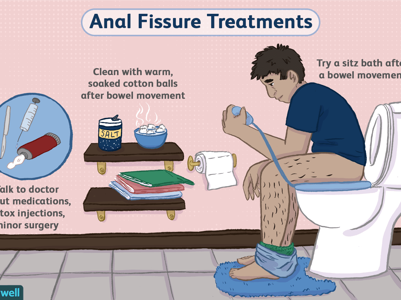Anal fissure images