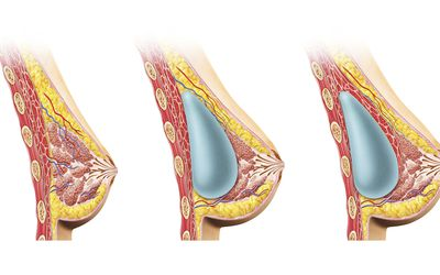 Female breast implant tissue expander that causes pain