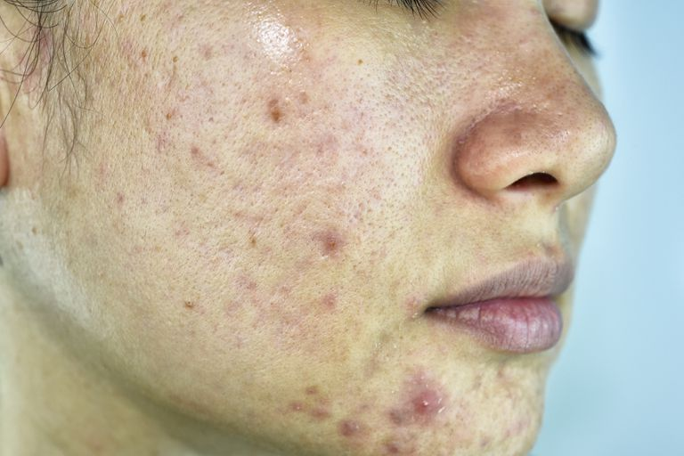 Close up of woman with acne