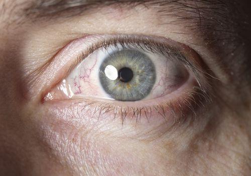 Close up of a man's eye