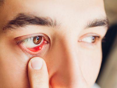 Stye inside eyelid