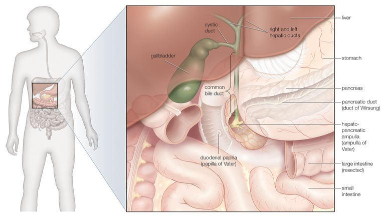 Understanding Gallstones And Gallbladder Disease