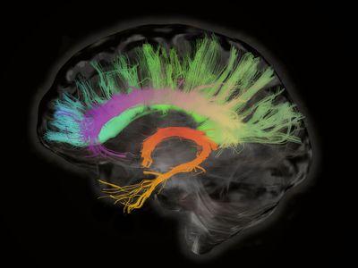 Nerve bundle in the brain