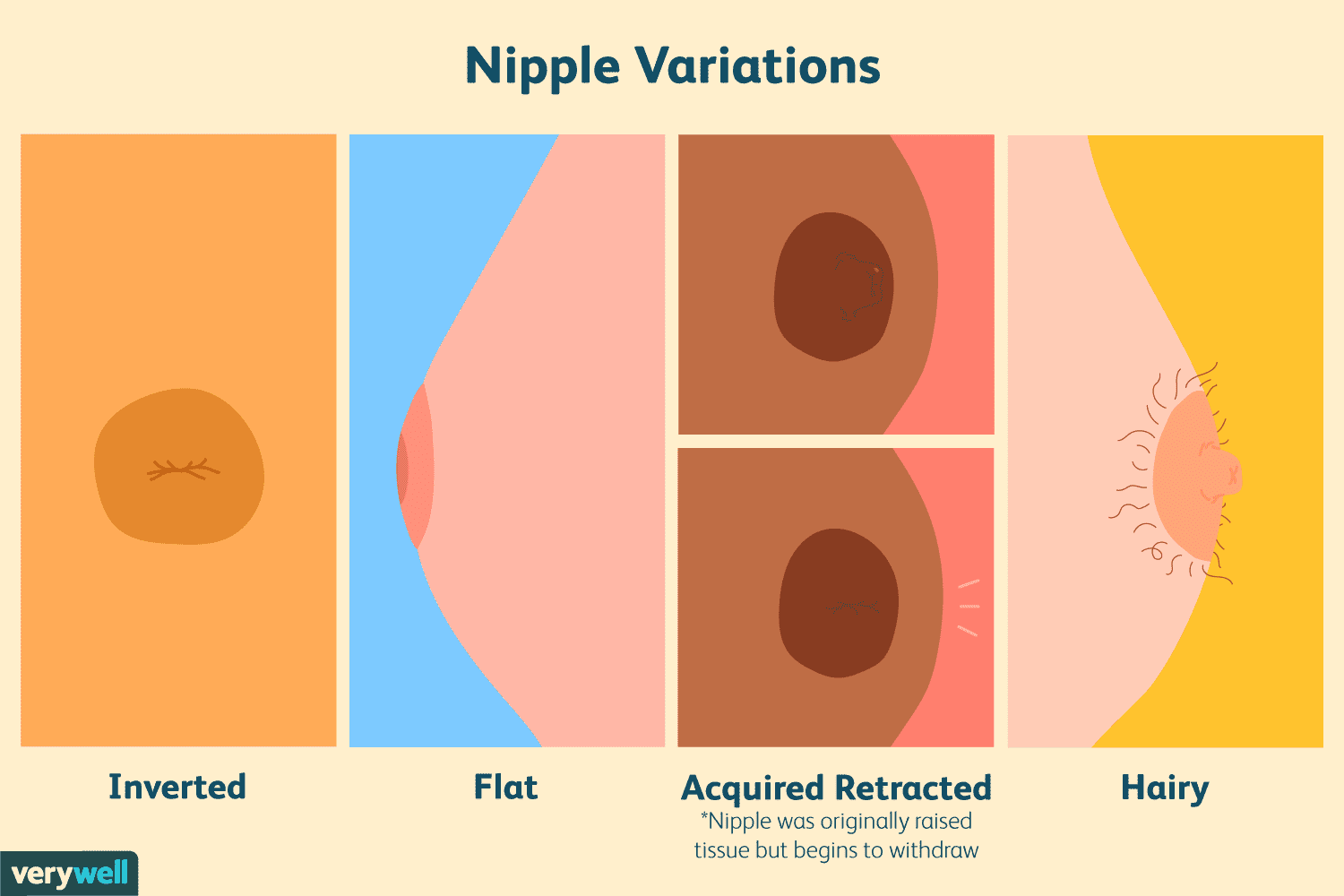 Nipple Types Common Flat And Inverted