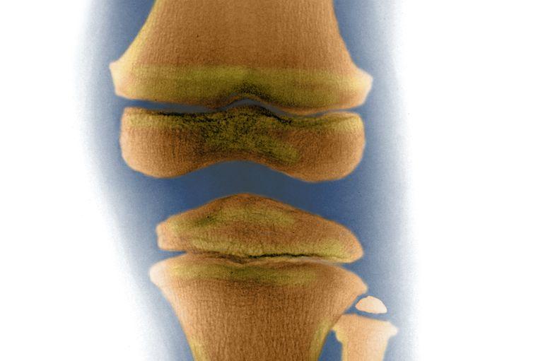 Child Knee, X-ray