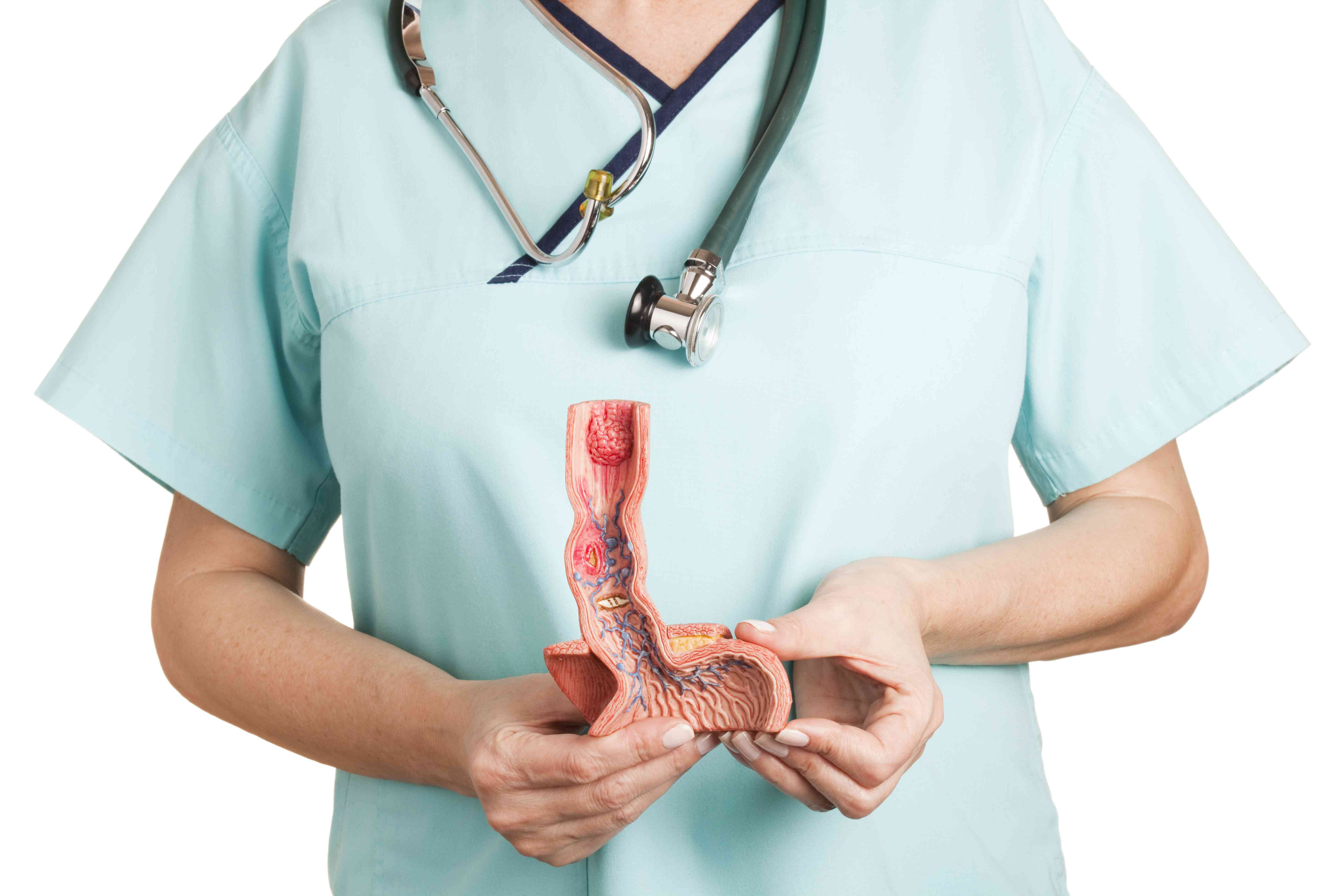 A doctor holding a model of an esophagus
