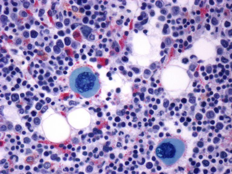 Bone marrow. Light micrograph of a section through bone marrow.