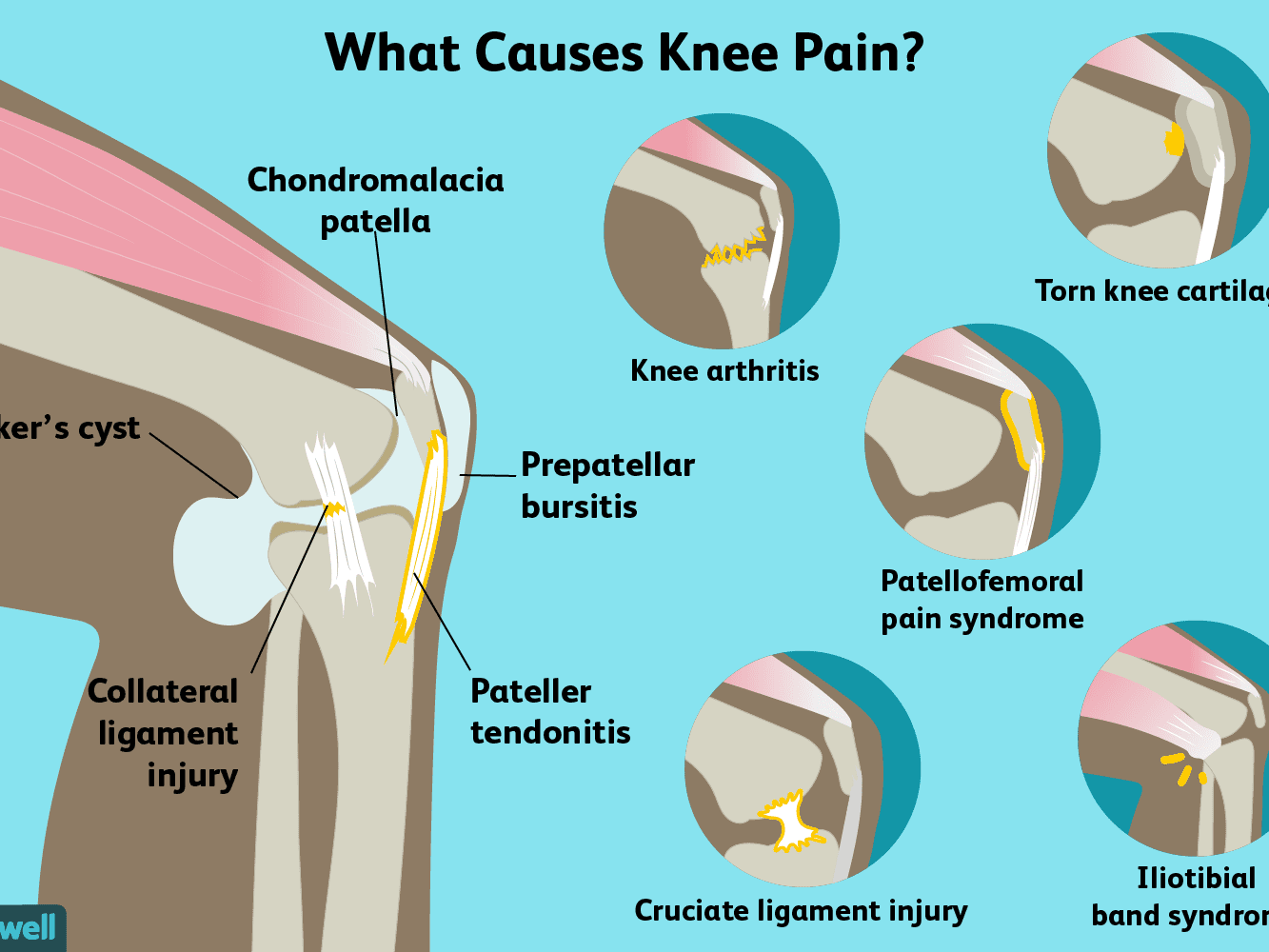 knees+are+sore+for+no+reason