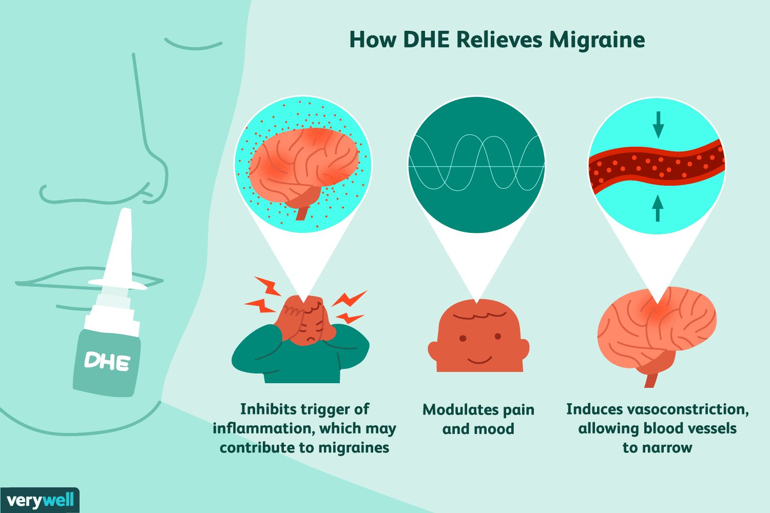 how DHE relieves migraine