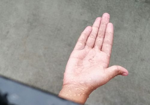 A hand in the supinate position.