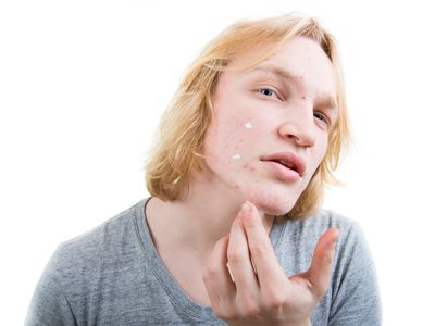 a young man applying acne cream to his face