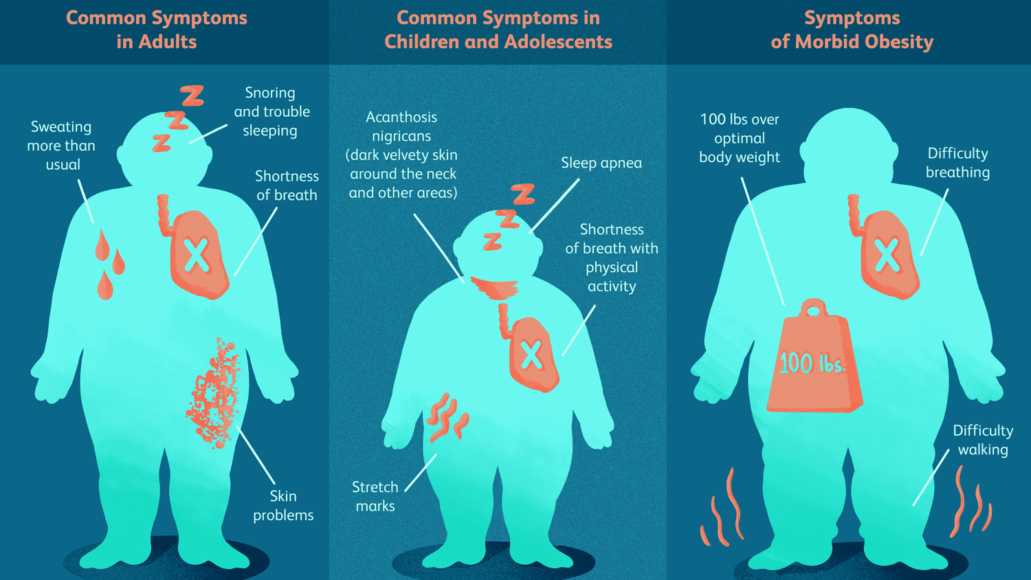 Obesity Signs, Symptoms, and Complications