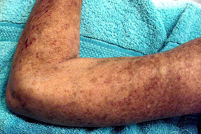 a patient's arm showing skin lesions caused by Scleroderma