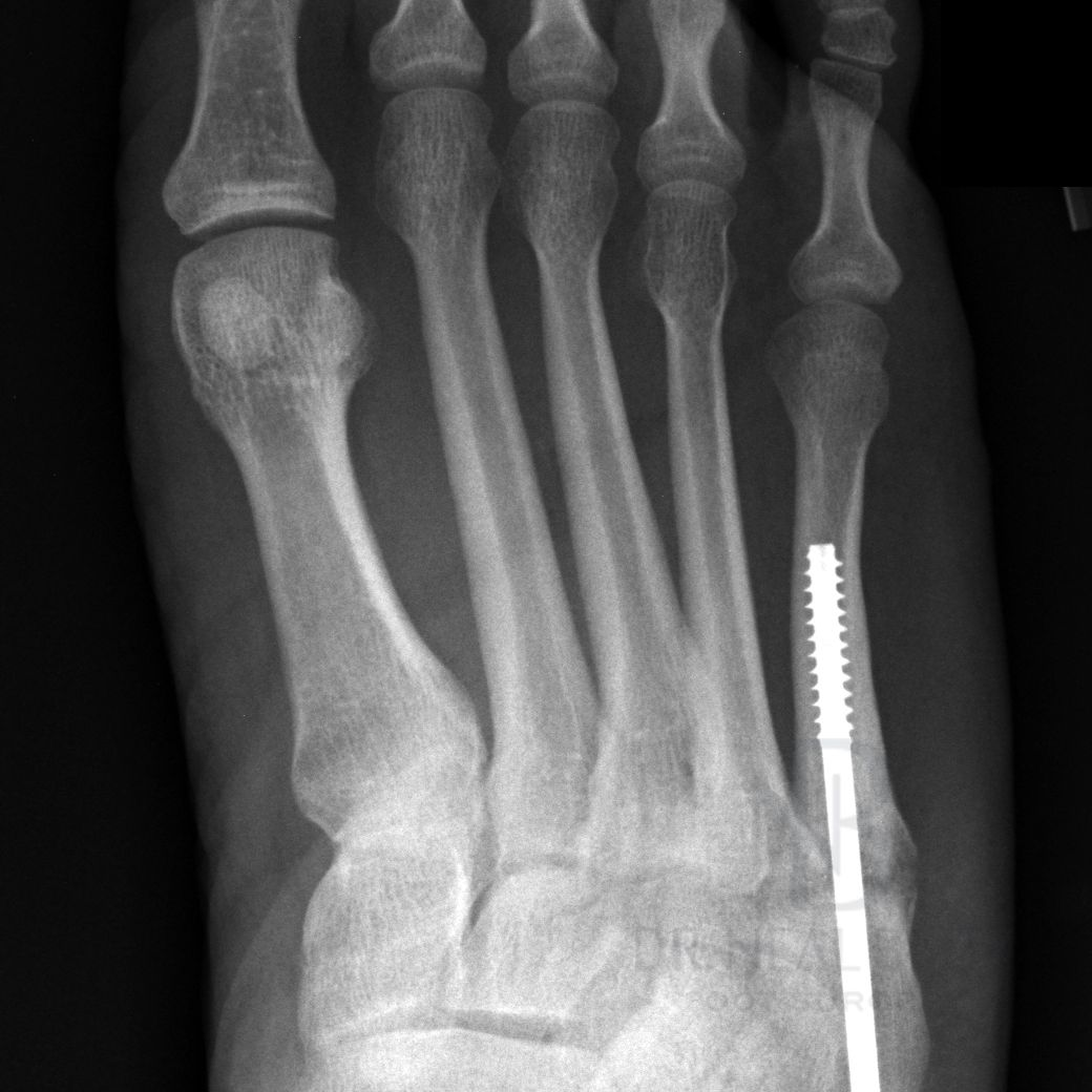4 Type Of Fifth Metatarsal Fracture