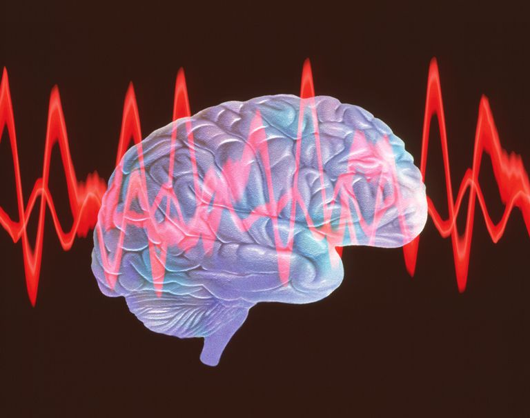 Brainwaves in Electroconvulsive Therapy