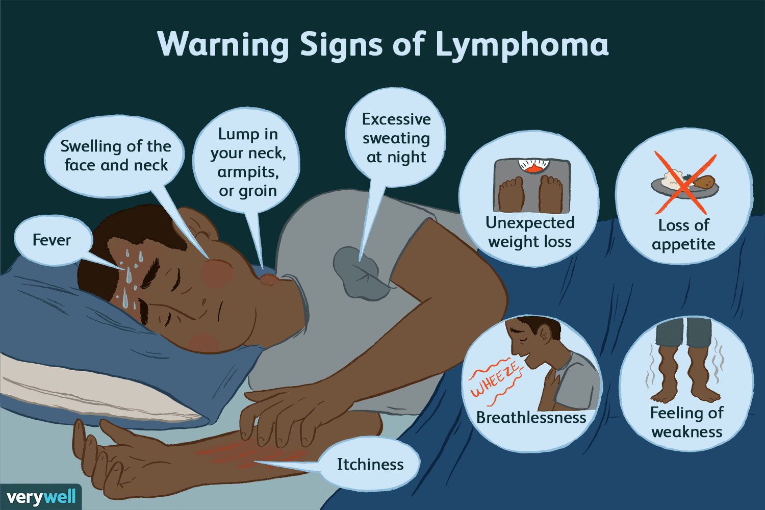 could these be warning signs of lymphoma