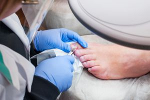 Surgeon operating on a patient's toe