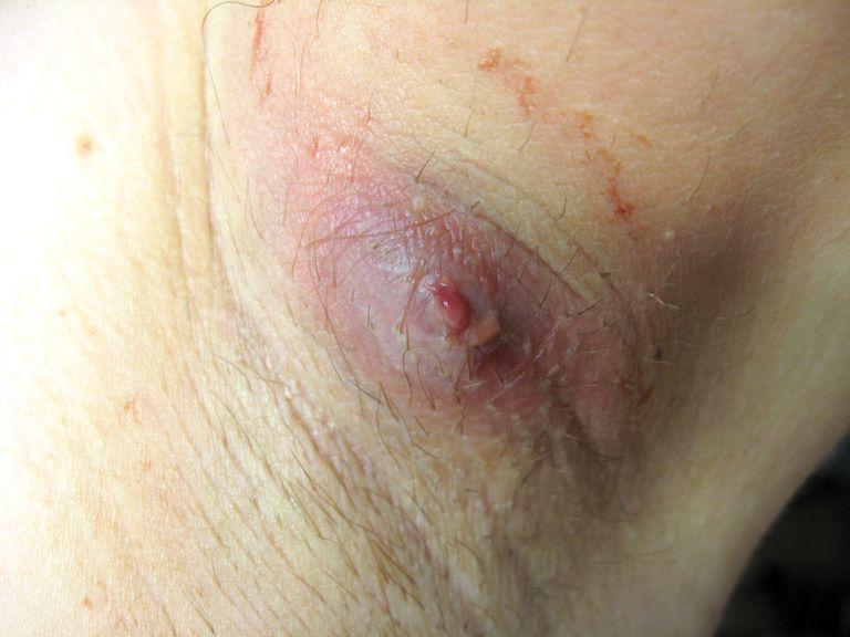 Boil in the armpit area